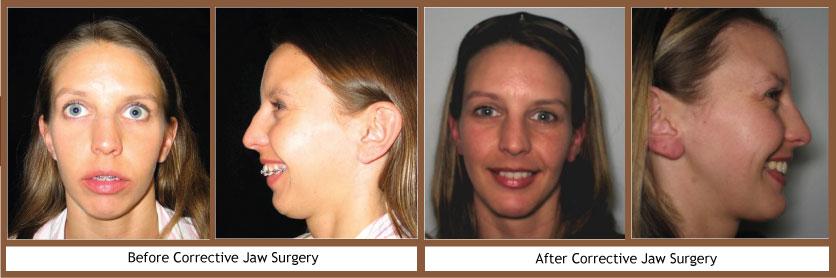 Orthognathic Surgery | Bushey
