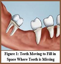 dental-implants_figure1