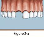 Dental Implants Figure 2-a