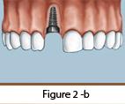 Dental Implants Figure 2-b