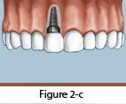 Dental Implants Figure 2-c