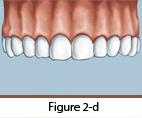 Dental Implants Figure 2-d