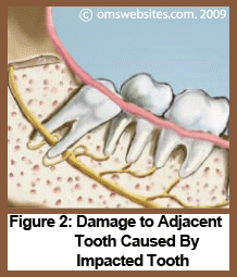 Figure 2 : Damage to Adjacent Tooth Caused By Impacted Tooth