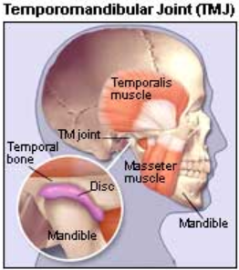Facial pain and tmj